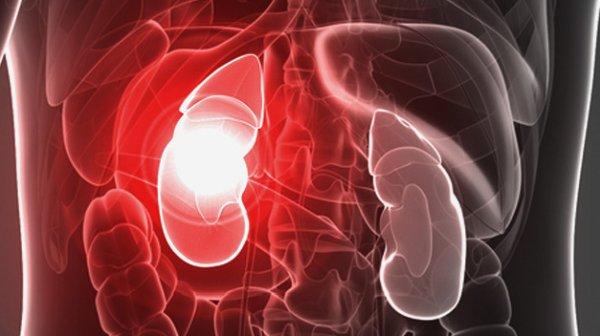 почечная недостаточность - осложнение бактериурии
