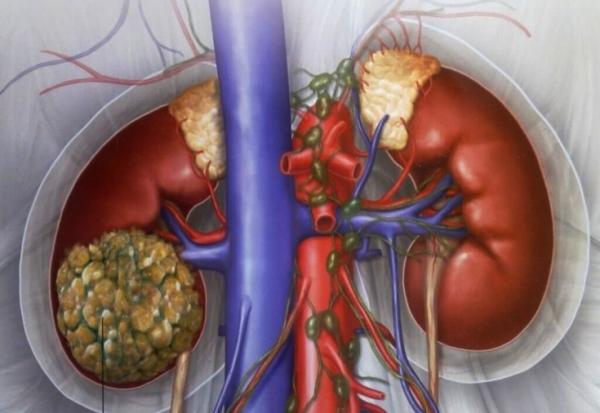 Прогноз после операции злокачественного новообразования напрямую зависит от своевременности постановки диагноза.