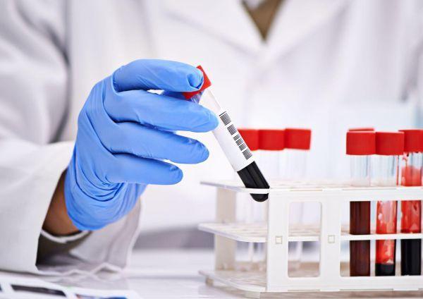 Анализы на гормоны надпочечников